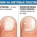 Как определить заболевание по ногтям на руках