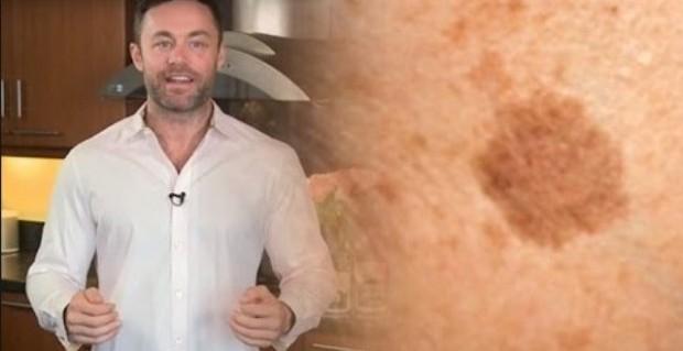 Известный дерматолог показал, как вывести коричневые пятна на коже лица с этим простым трюком! - Твой интернет