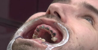 Мужчина пил каждый день газировку, полюбуйтесь на его зубы - Твой интернет