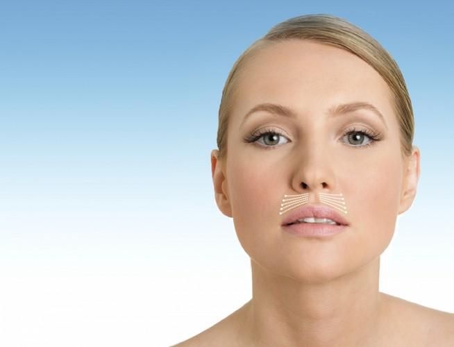 Как убрать морщинки над верхней губой: 6 эффективных способа