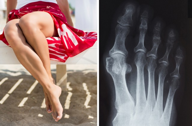 """Найден отличный способ избавления от """"шишки"""" на большом пальце ноги"""