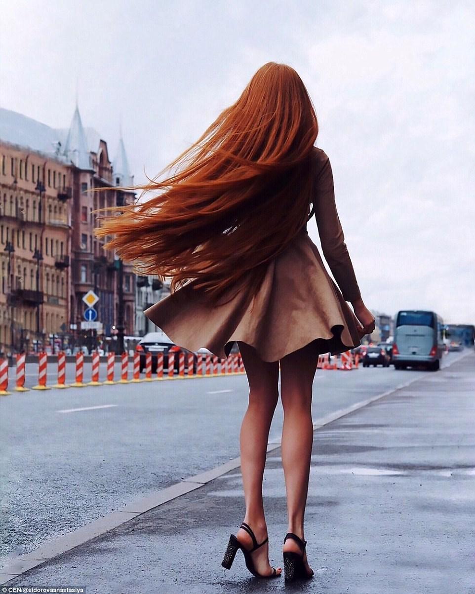 Сумасшедшая трансформация: девушка, страдающая от облысения, отрастила шикарную шевелюру