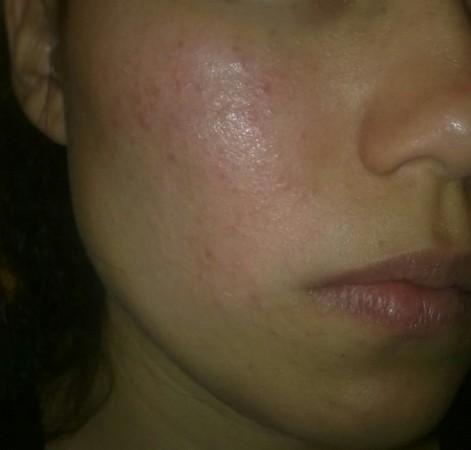 «Энтеросгель» как средство для борьбы с проблемной кожей