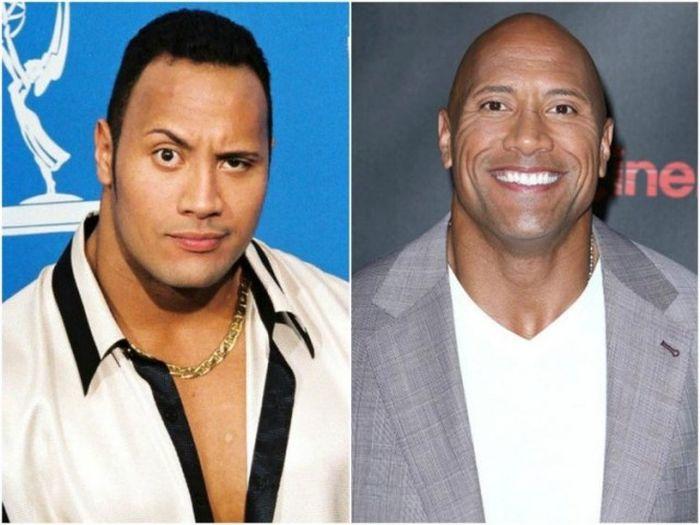 Знаменитости до того, как потеряли свои волосы