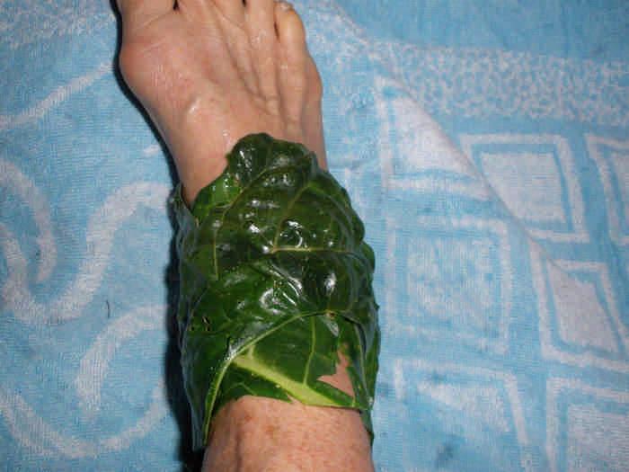 Компресс от остеохондроза капустный лист