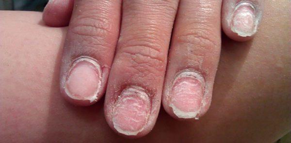 Частое наращивание ногтей может обернуться серьезной проблемой